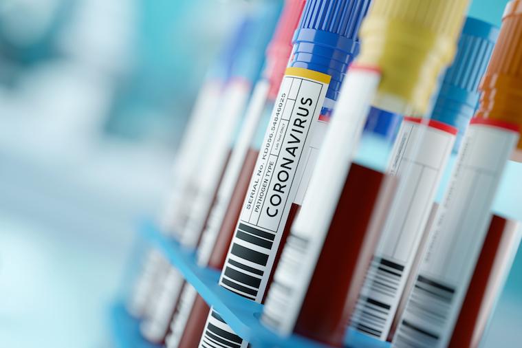 Depuis quatre mois, l'Union européenne est  durement touchée par la pandémie de Covid-19 - Crédits : iStock 2020